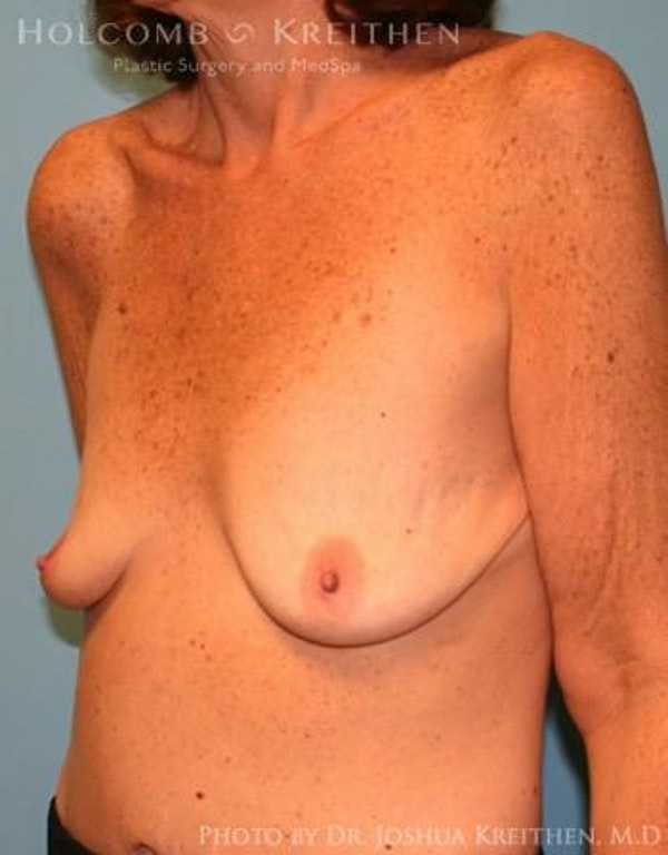 Breast Augmentation Gallery - Patient 6236648 - Image 3
