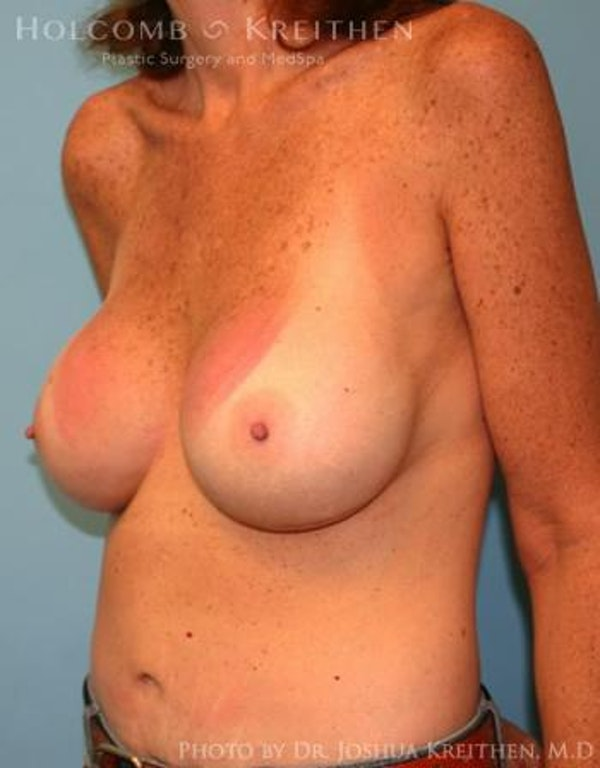 Breast Augmentation Gallery - Patient 6236648 - Image 4