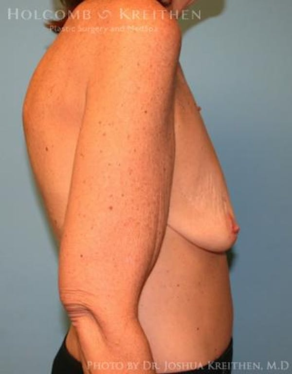 Breast Augmentation Gallery - Patient 6236648 - Image 5