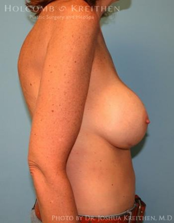 Breast Augmentation Gallery - Patient 6236648 - Image 6