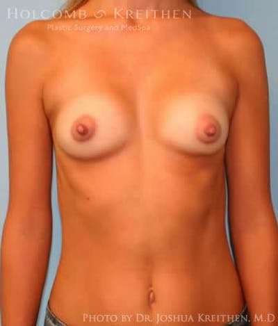 Breast Augmentation Gallery - Patient 6236650 - Image 1