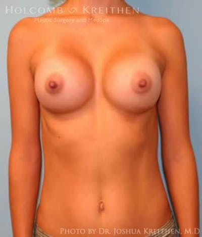 Breast Augmentation Gallery - Patient 6236650 - Image 2