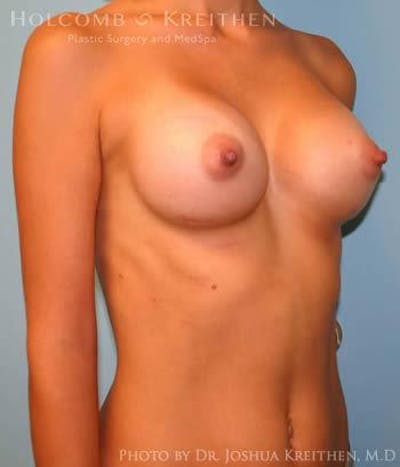 Breast Augmentation Gallery - Patient 6236650 - Image 4