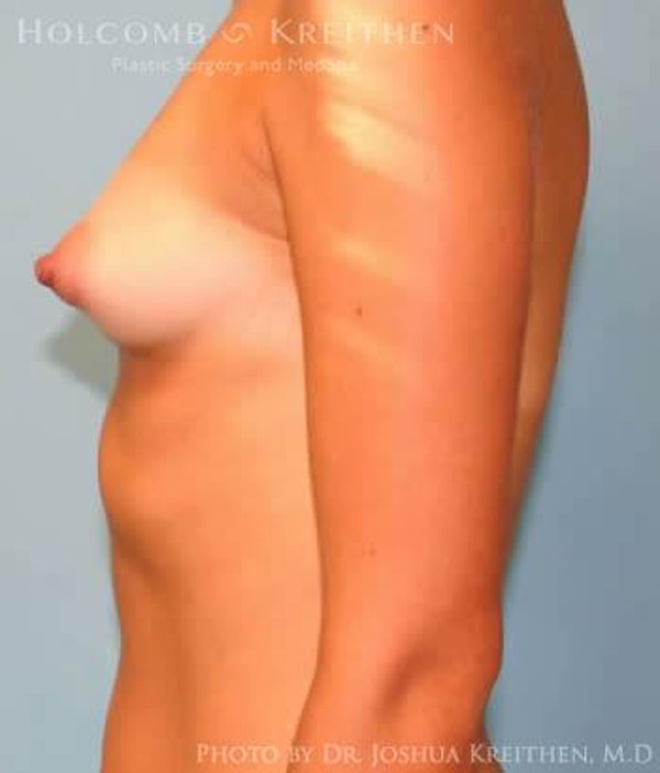 Breast Augmentation Gallery - Patient 6236650 - Image 5