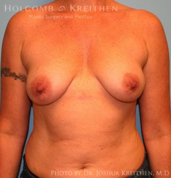 Breast Augmentation Gallery - Patient 6236651 - Image 1