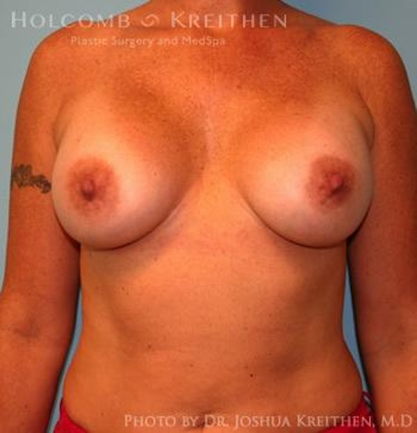 Breast Augmentation Gallery - Patient 6236651 - Image 2