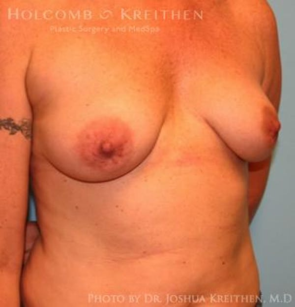 Breast Augmentation Gallery - Patient 6236651 - Image 3