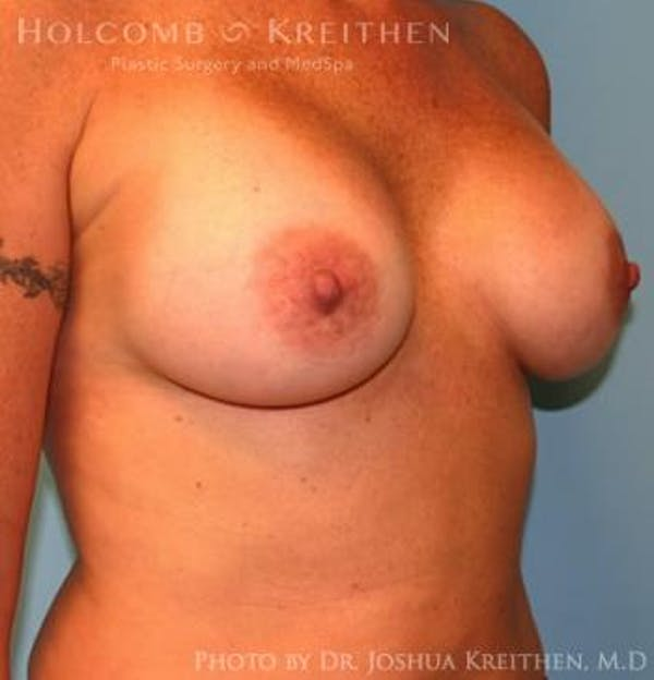 Breast Augmentation Gallery - Patient 6236651 - Image 4
