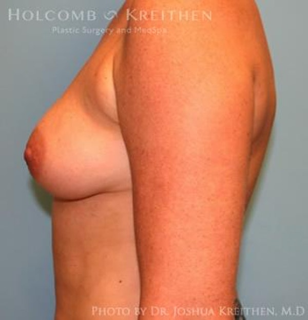 Breast Augmentation Gallery - Patient 6236651 - Image 5