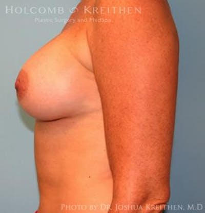 Breast Augmentation Gallery - Patient 6236651 - Image 6