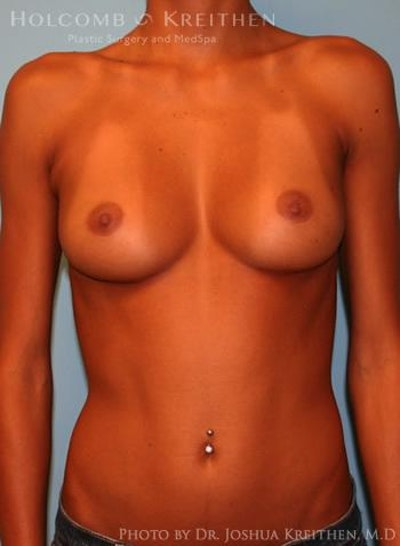Breast Augmentation Gallery - Patient 6236655 - Image 1