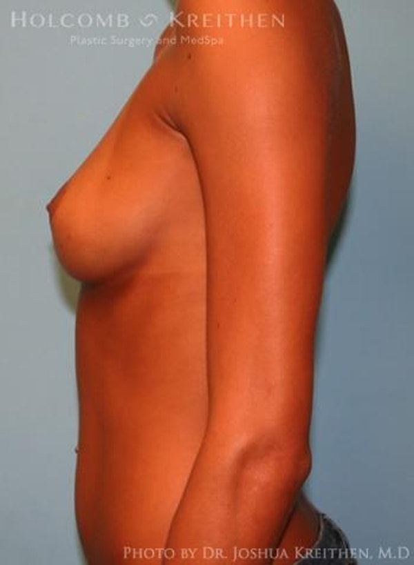 Breast Augmentation Gallery - Patient 6236655 - Image 5