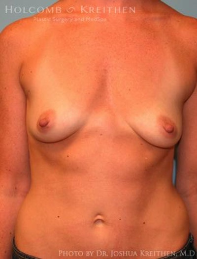 Breast Augmentation Gallery - Patient 6236656 - Image 1