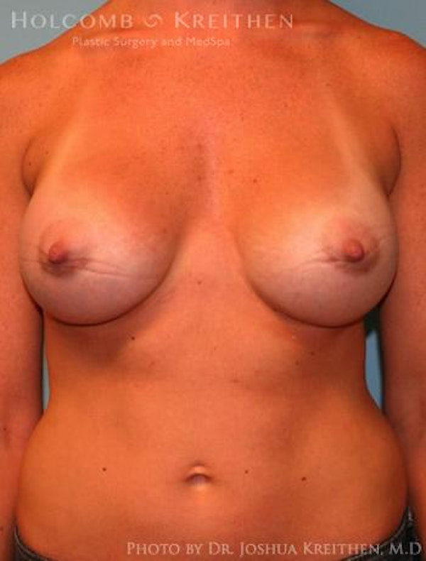 Breast Augmentation Gallery - Patient 6236656 - Image 2