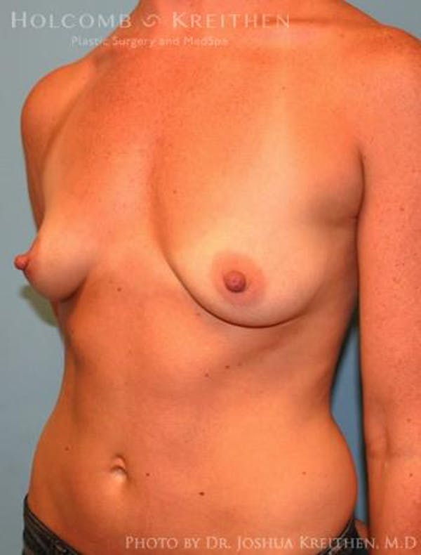 Breast Augmentation Gallery - Patient 6236656 - Image 3