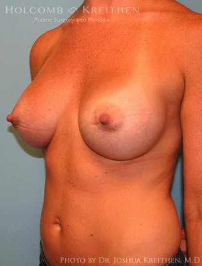 Breast Augmentation Gallery - Patient 6236656 - Image 4