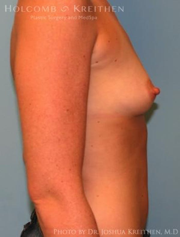 Breast Augmentation Gallery - Patient 6236656 - Image 5