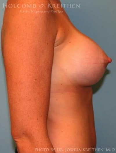 Breast Augmentation Gallery - Patient 6236656 - Image 6