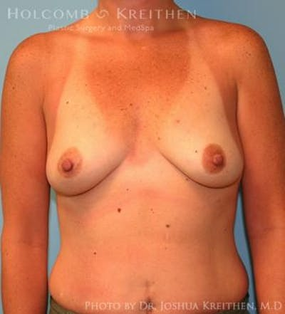 Breast Augmentation Gallery - Patient 6236657 - Image 49