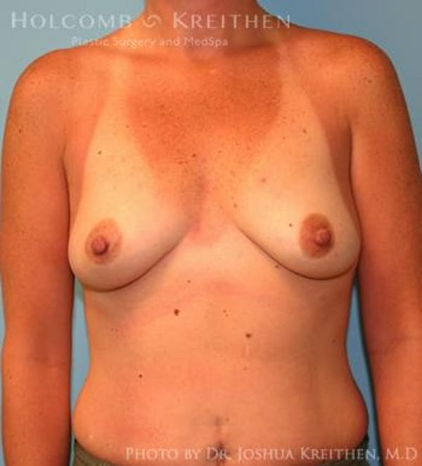 Breast Augmentation Gallery - Patient 6236657 - Image 1