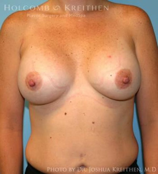 Breast Augmentation Gallery - Patient 6236657 - Image 2