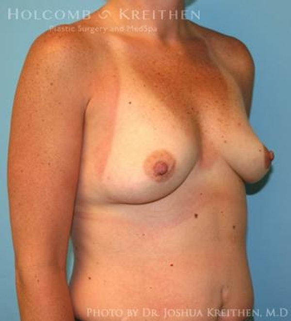 Breast Augmentation Gallery - Patient 6236657 - Image 3