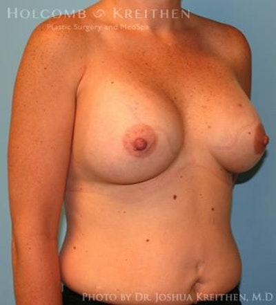Breast Augmentation Gallery - Patient 6236657 - Image 4