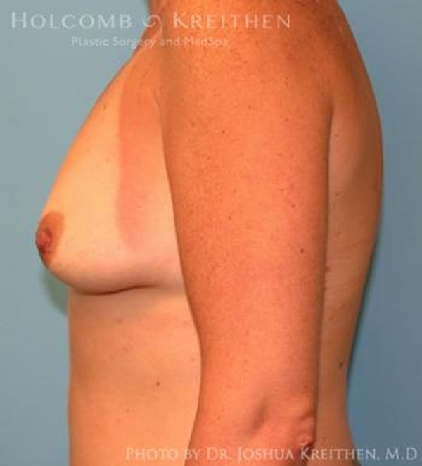 Breast Augmentation Gallery - Patient 6236657 - Image 5