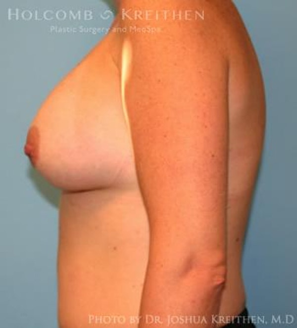 Breast Augmentation Gallery - Patient 6236657 - Image 6