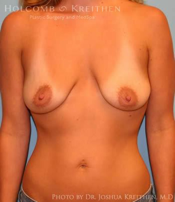 Breast Augmentation Gallery - Patient 6236660 - Image 1