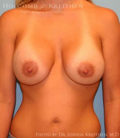 Breast Augmentation Gallery - Patient 6236660 - Image 2