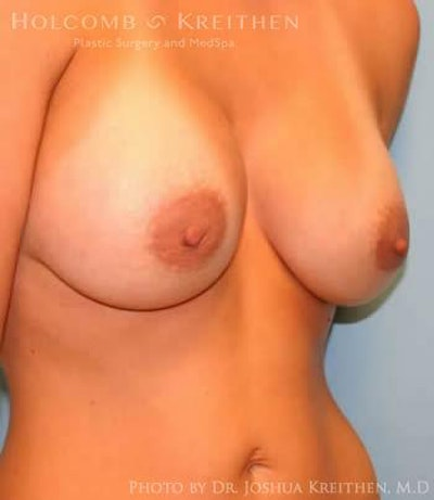 Breast Augmentation Gallery - Patient 6236660 - Image 4