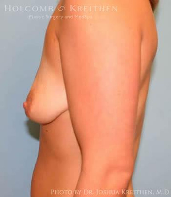 Breast Augmentation Gallery - Patient 6236660 - Image 5