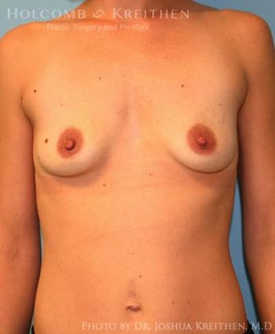 Breast Augmentation Gallery - Patient 6236663 - Image 1