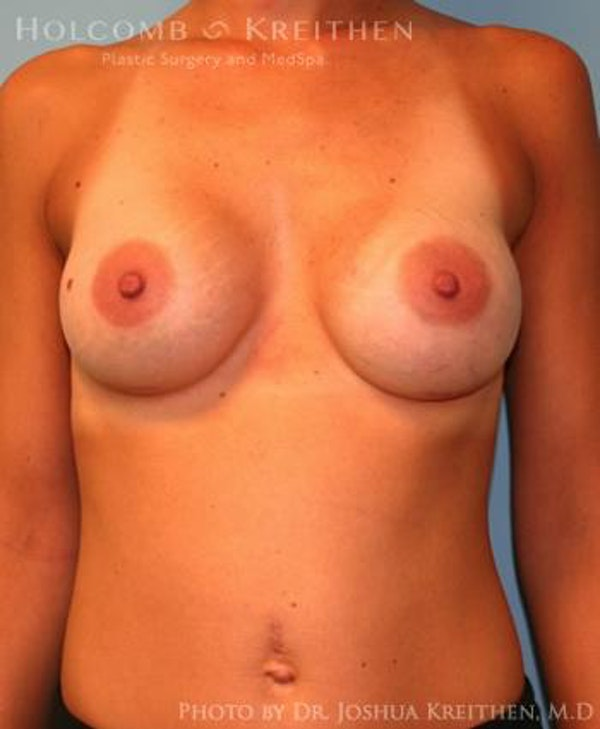 Breast Augmentation Gallery - Patient 6236663 - Image 2