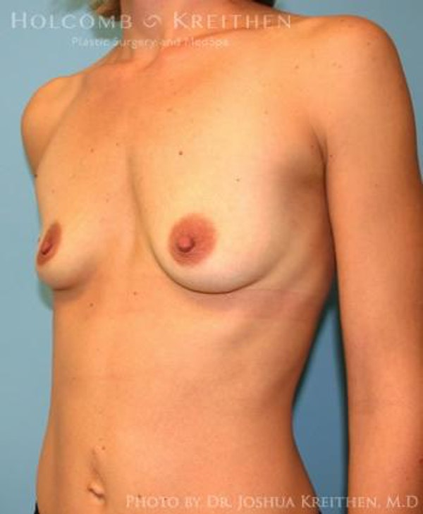 Breast Augmentation Gallery - Patient 6236663 - Image 3