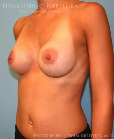 Breast Augmentation Gallery - Patient 6236663 - Image 4