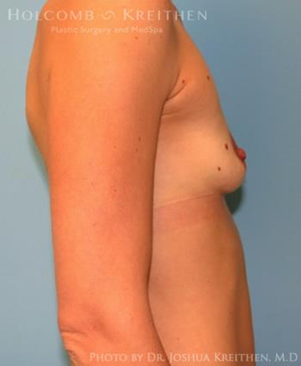 Breast Augmentation Gallery - Patient 6236663 - Image 5