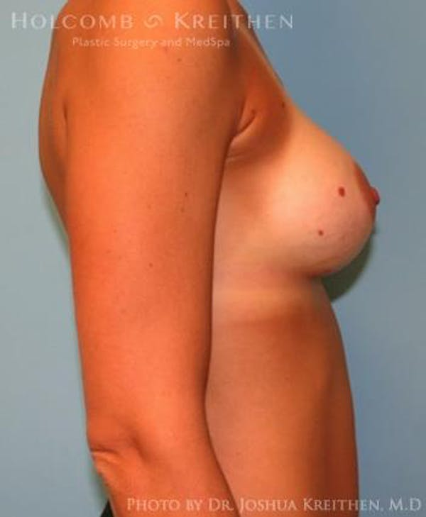 Breast Augmentation Gallery - Patient 6236663 - Image 6