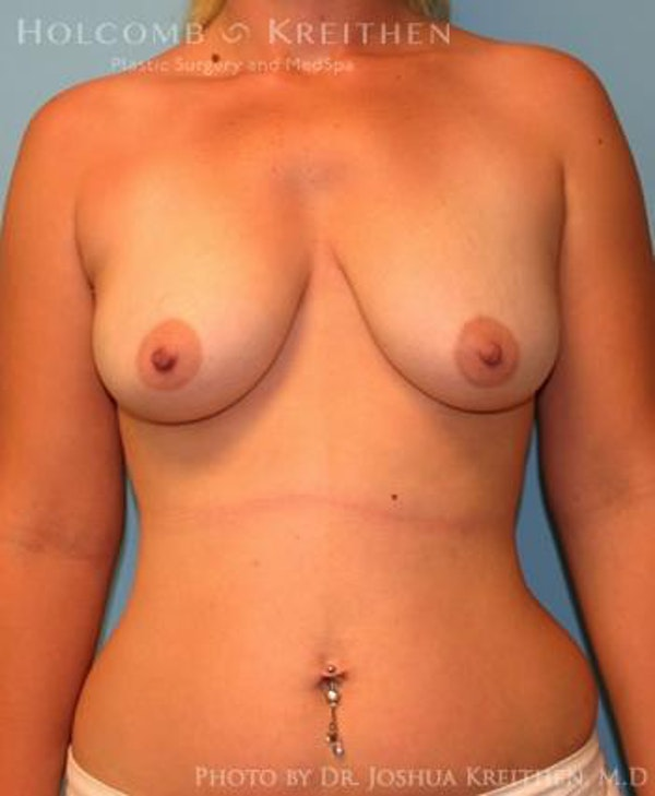 Breast Augmentation Gallery - Patient 6236664 - Image 1
