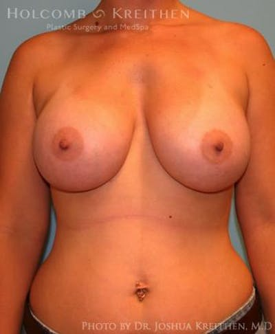 Breast Augmentation Gallery - Patient 6236664 - Image 2