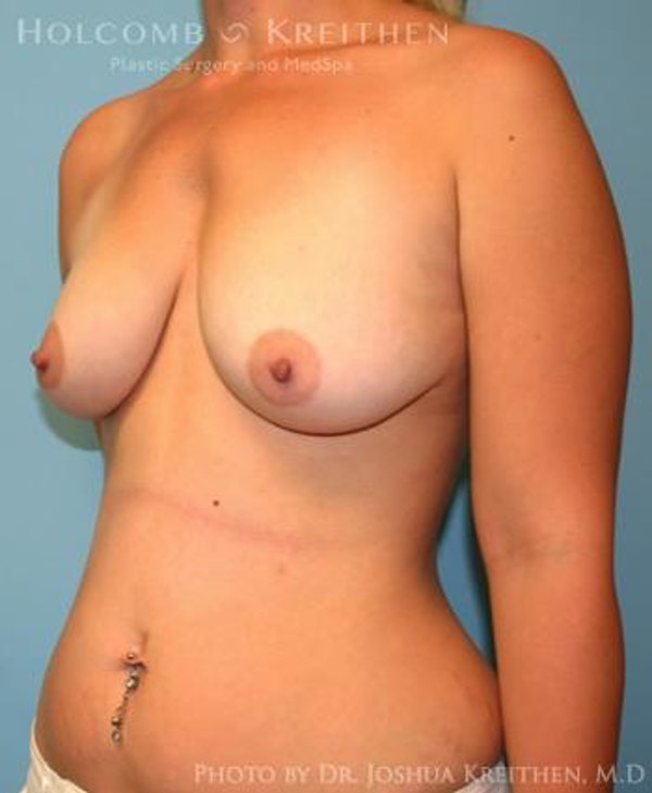 Breast Augmentation Gallery - Patient 6236664 - Image 3
