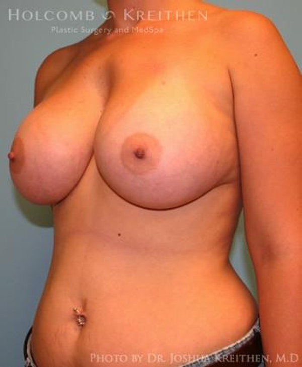 Breast Augmentation Gallery - Patient 6236664 - Image 4