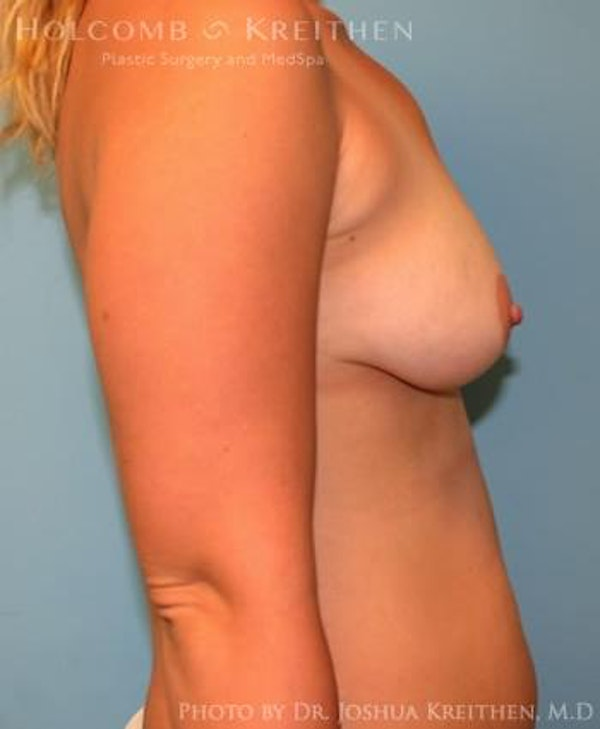 Breast Augmentation Gallery - Patient 6236664 - Image 5