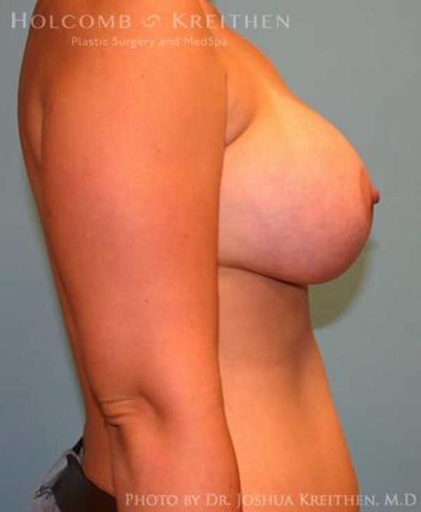 Breast Augmentation Gallery - Patient 6236664 - Image 6