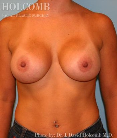 Breast Augmentation Gallery - Patient 6236665 - Image 2