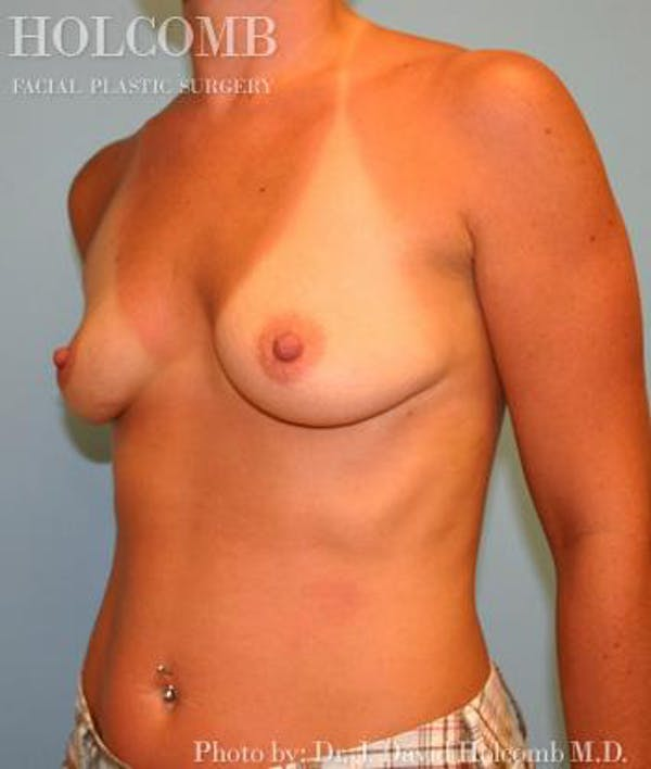 Breast Augmentation Gallery - Patient 6236665 - Image 3