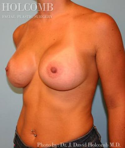 Breast Augmentation Gallery - Patient 6236665 - Image 4