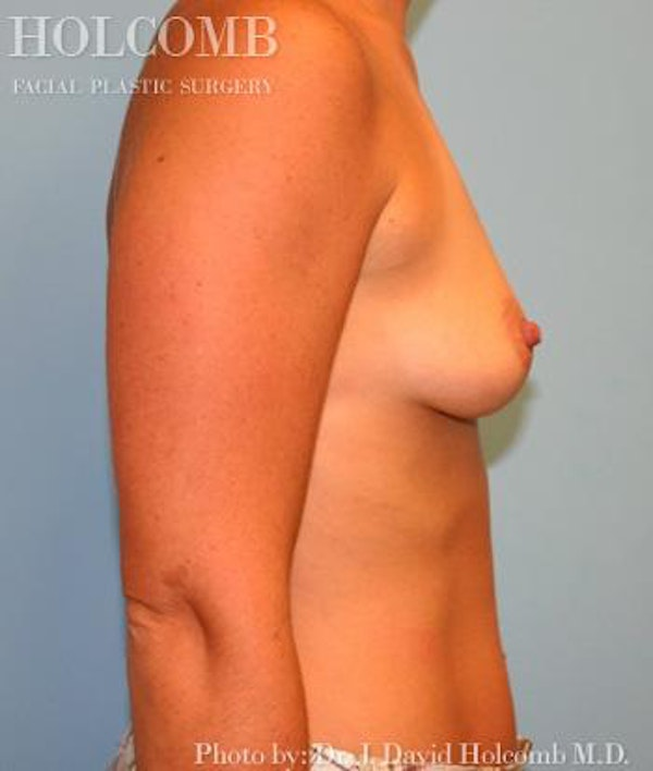 Breast Augmentation Gallery - Patient 6236665 - Image 5