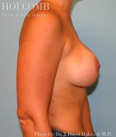 Breast Augmentation Gallery - Patient 6236665 - Image 6